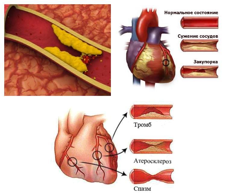 Атеросклероз аорты сердца что это такое?