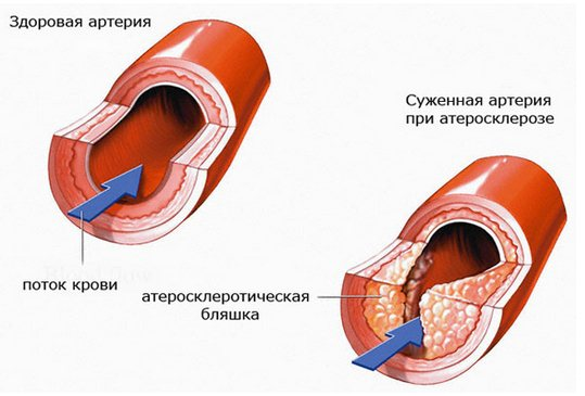 Атеросклероз артерій » журнал здоров'я iHealth