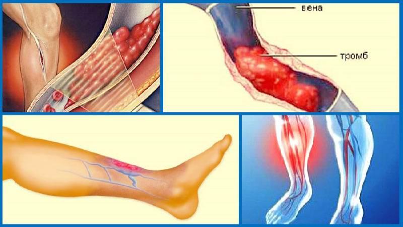 Відірвався тромб на нозі симптоми » журнал здоров'я iHealth