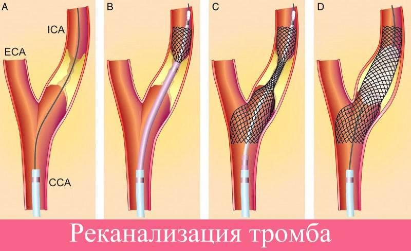 Реканализация тромба