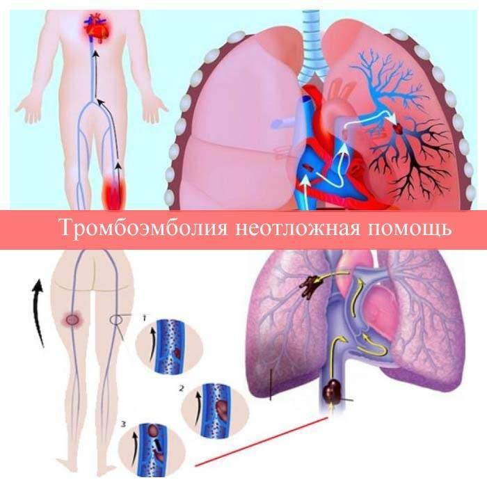 Тромбоэмболия легочной артерии неотложная помощь