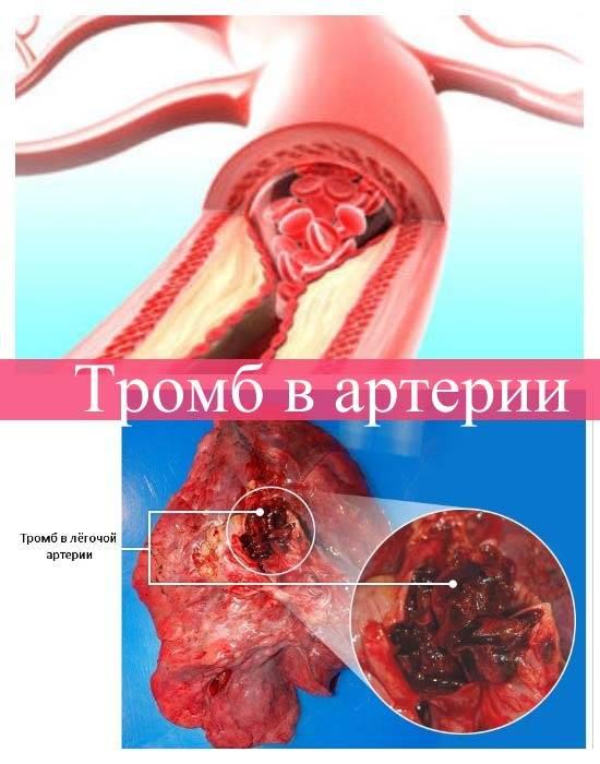 Тромб в артерии