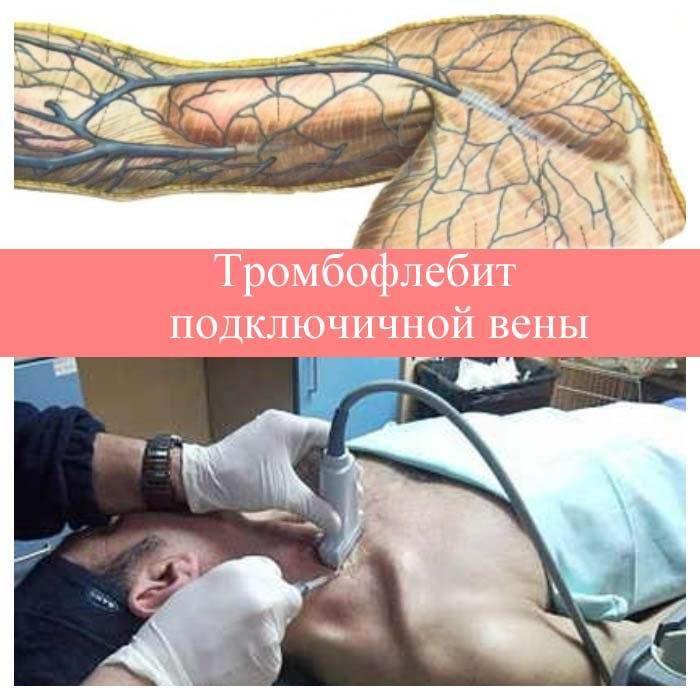 тромбофлебит подключичной вены