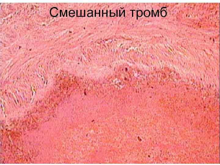 Смешанный тромб
