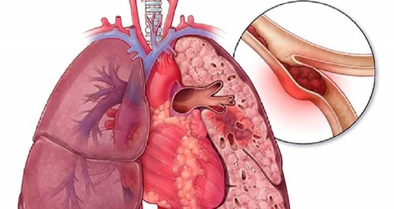 Профилактика тромбоэмболии