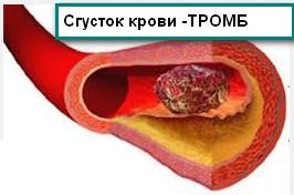 От чего образуются тромбы в крови