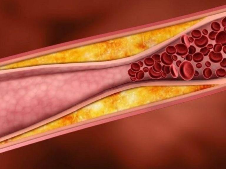 Тромбоз артерии