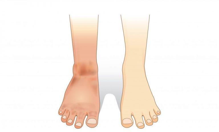 Тромбоз артерий нижних конечностей