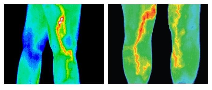 Диагностика тромбов в сосудах